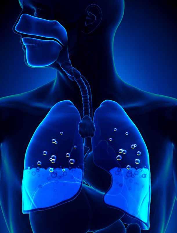 Пневмония.