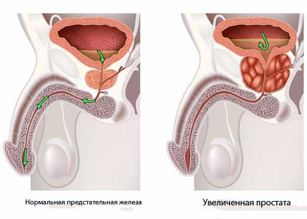 Нервные расстройства из за простатита