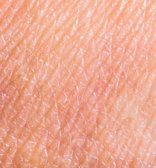 Рак кожи.