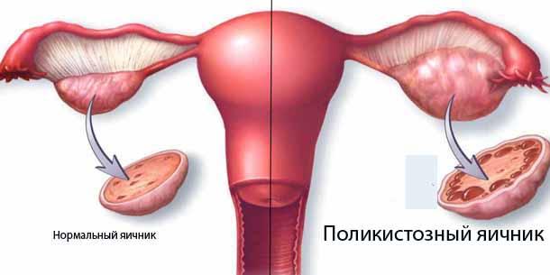 Синдром поликистозных яичников.