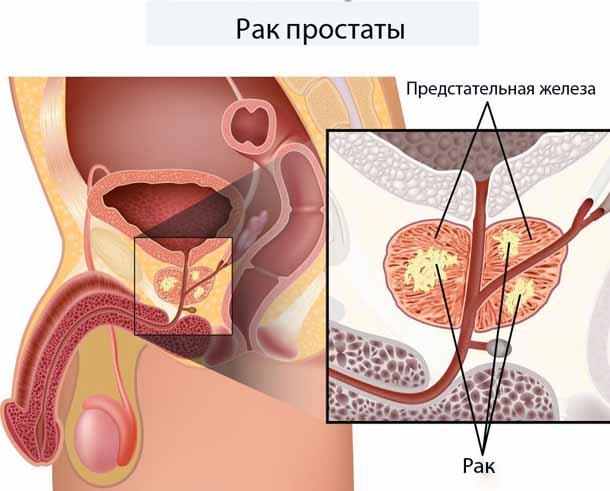 Гипоэхогенное образование.