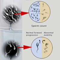 Normal sperm production — 6